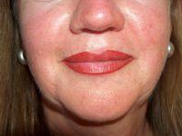 Lippenvollzeichnung_nachher